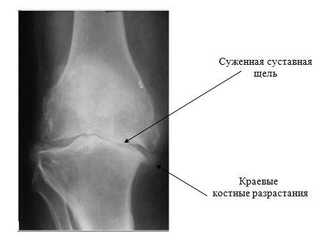 indometacină cu artroză a genunchiului