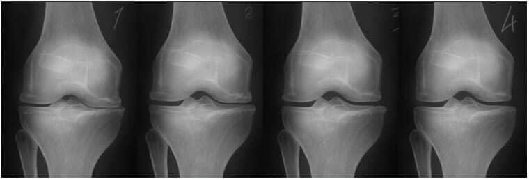 exacerbarea de primăvară a bolii articulare lăstari și dureri în articulația șoldului