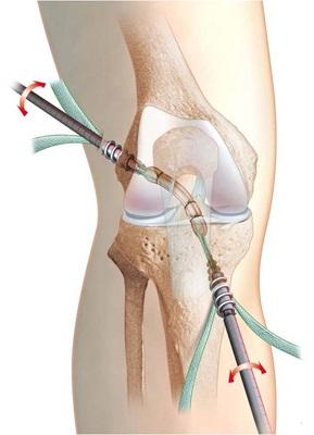 recuperare după sfâșierea ligamentelor articulației genunchiului