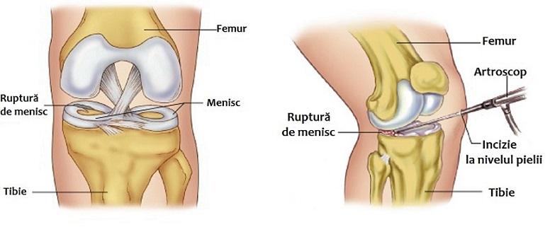 unguent pentru tratamentul meniscului genunchiului unguente articulare bune