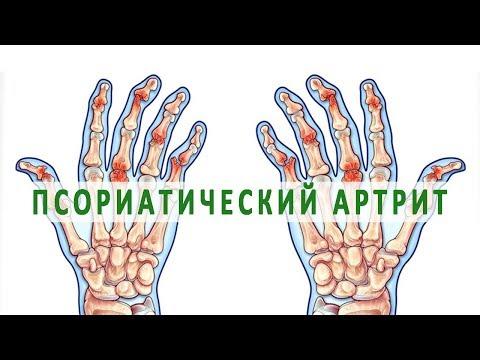 tratament articular în tuapse tratament pentru articulațiile cartilajelor