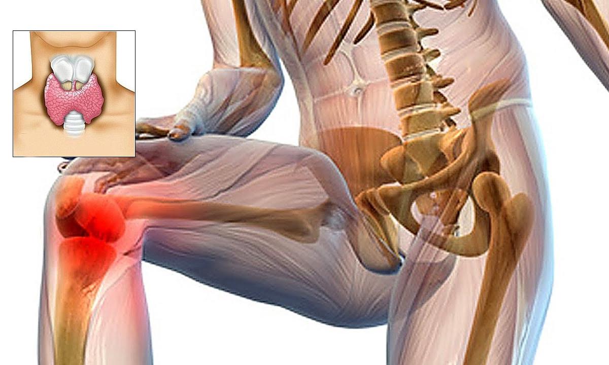 tratamentul fermatronului cu artroză