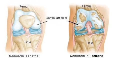 artroza genunchiului tratament eficient cu medicamente inflamație articulară multiplă în latină
