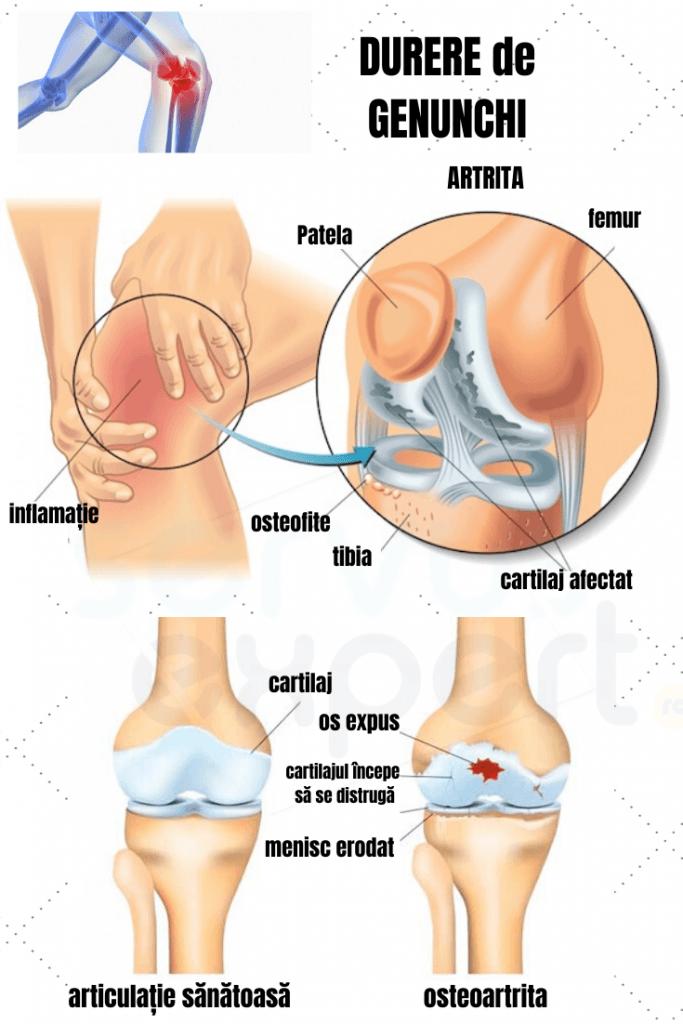 boli ale articulatiilor genunchiului