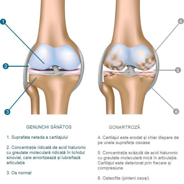 inflamația cartilajelor articulare