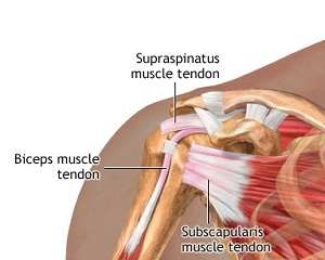 tendoane dureroase ale articulației umărului