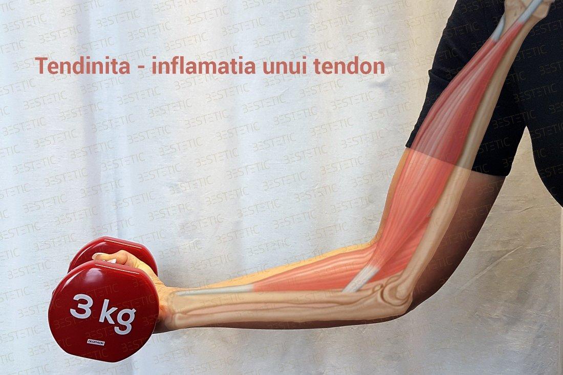 durere de tendon aportul de glucozamină și condroitină