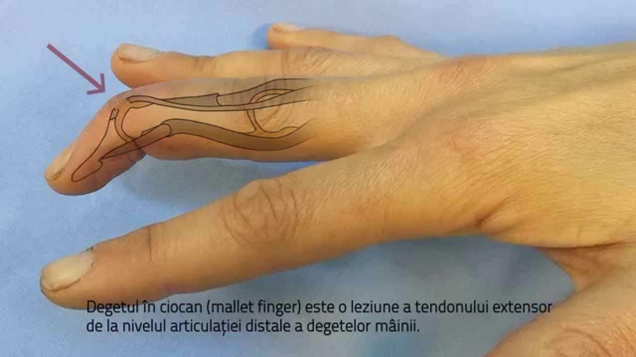 articulatia mainii inflamata tratare entorsa glezna