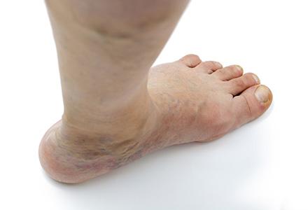 cauze degete umflate la picioare pentru a restabili ligamentele și articulațiile care