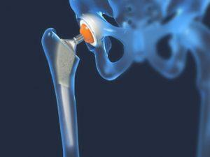 subluxarea radială a tratamentului articulației cotului