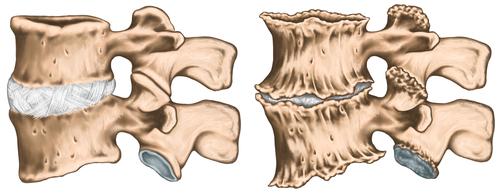 tratament articular calcaneal bile pentru dureri articulare