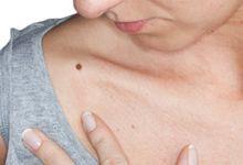 roseata pielii cu inflamatii articulare
