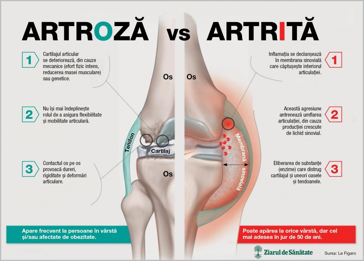 artroza boala)