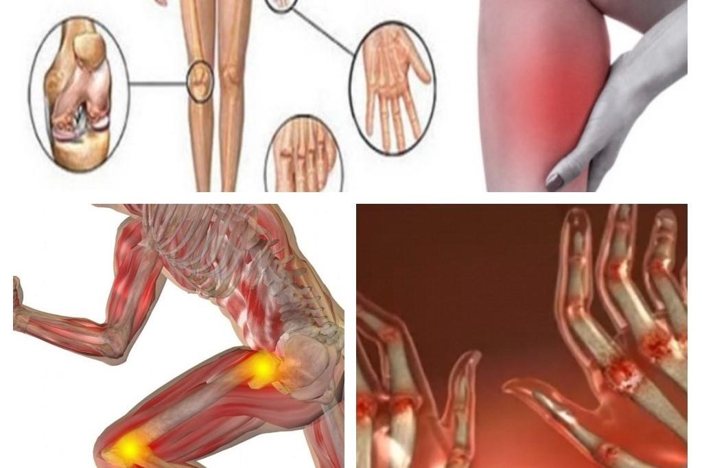 tratament naturist pentru artrită reumatoidă