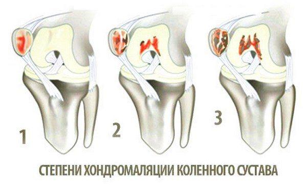 restaurarea cartilajului hialin al articulației șoldului
