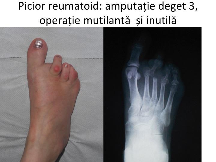 artrita 2 degetele de la picioare