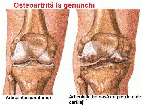 deformare articulară în artrita gutoasă articulațiile sunt reci decât tratate