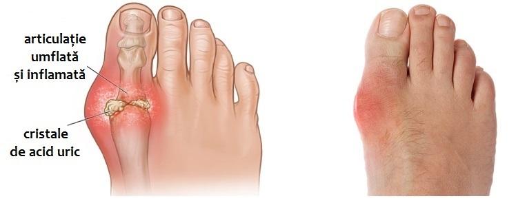 cauze ale inflamației articulare pe picioare băi terapeutice pentru durerile articulare