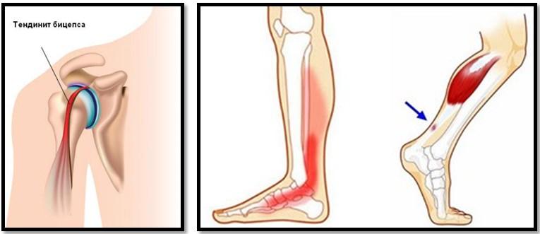 este posibilă vindecarea artrozei articulației genunchiului ajută dimexidul la durerile articulare