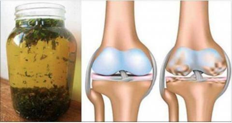 remediu articular artritic când articulațiile pelvisului doare
