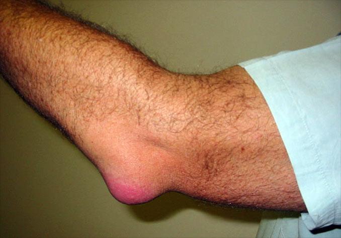 tratament pentru bursita articulației cotului