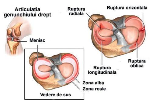 meniscul afectează tratamentul articulației genunchiului braț dureros în articulația umărului și dedesubt