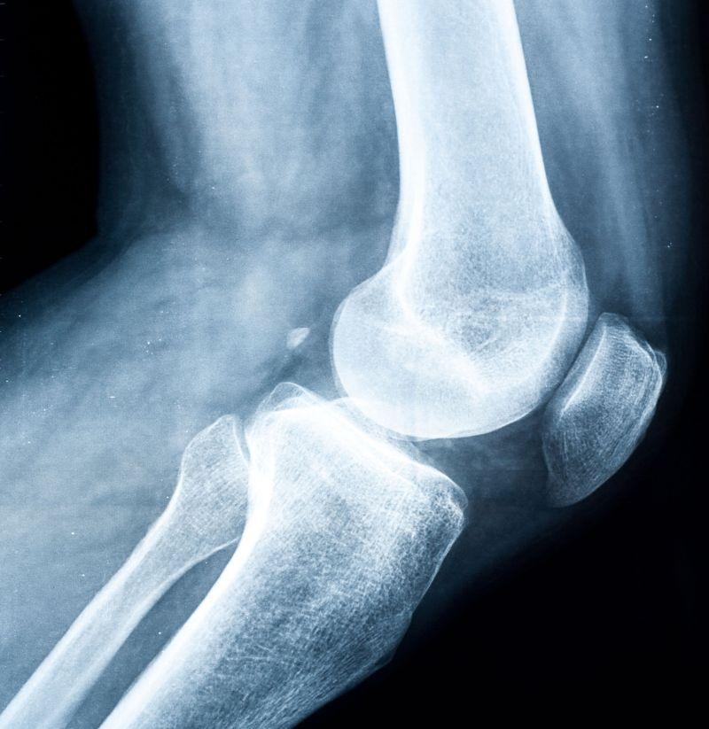 radiografie pentru dureri de genunchi tratarea artritei cu celule stem și a artrozei