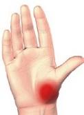 deteriorarea articulației degetului Pastile de durere articulare Melamexin