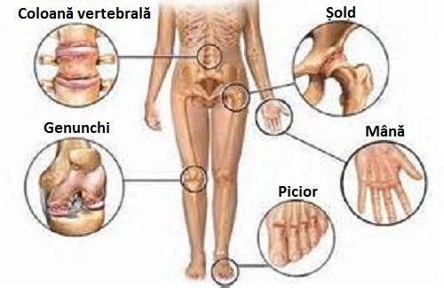 soluție pentru ameliorarea inflamațiilor articulare