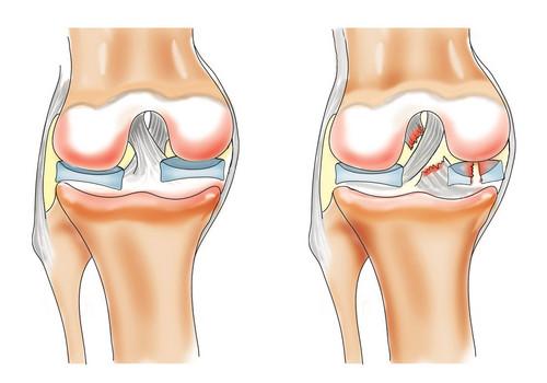 Fizioterapia, un aliat pentru a combate durerea de genunchi