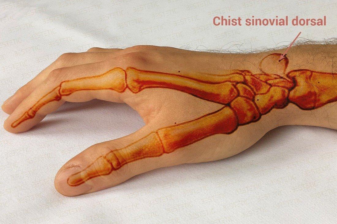 tratamentul ganglionului tendonului la încheietura mâinii tratament cu plante de artroză