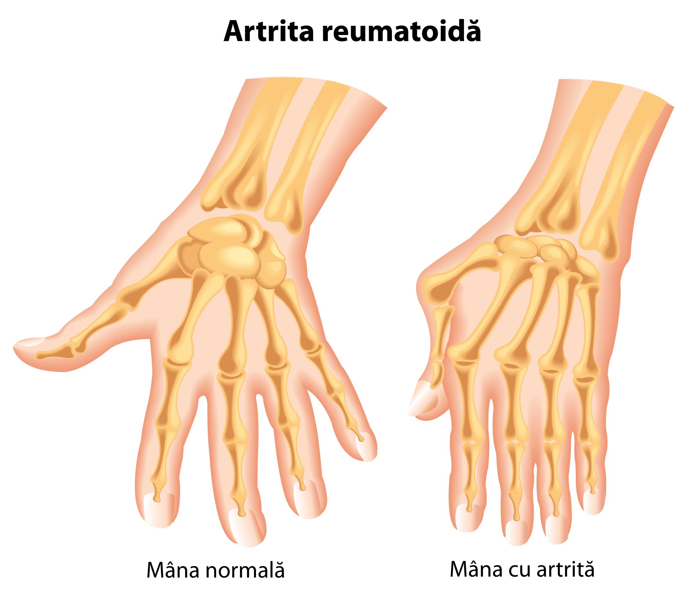 Articulațiile de pe mâini, rănesc tratament