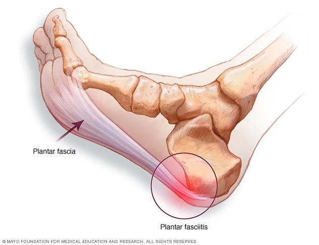 de ce doare articulația din călcâie