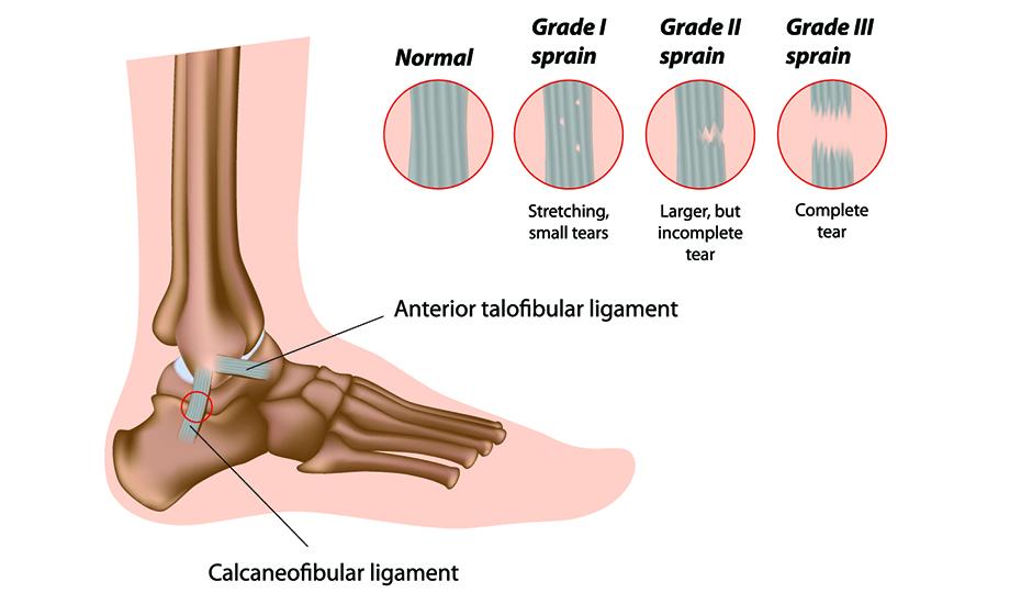 entorsele de glezna totul despre artroza și tratamentul artritei