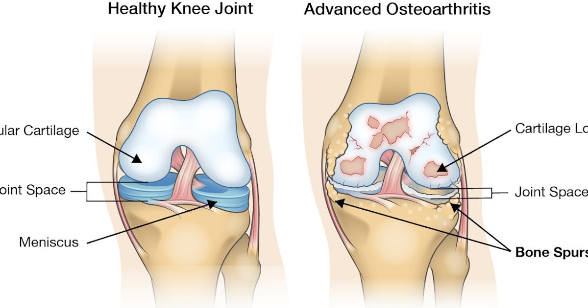 unguente pentru durere în articulațiile mâinilor articulațiile genunchiului doare ce să facă