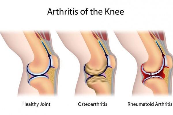 artrita de 1 grad cum se tratează artroza și tratamentul poliartritei