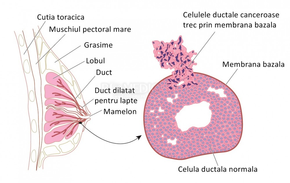 Durerile de San: Cauze • Diagnosticare si Tratamente
