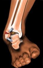 dureri articulare după un somn care să trateze artrita reumatoidă
