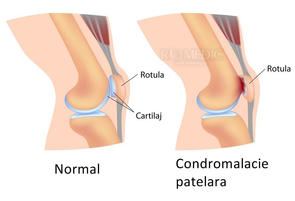 Boli degenerative-distrofice ale articulației genunchiului. Boala degenerativa a articulatiilor