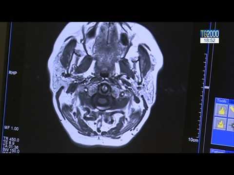 tratamentul inflamației articulației sternoclaviculare deformând artroza în tratamentul articulației gleznei