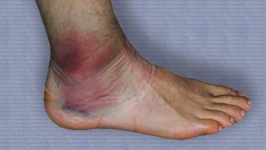 durere în articulația genunchiului piciorului drept
