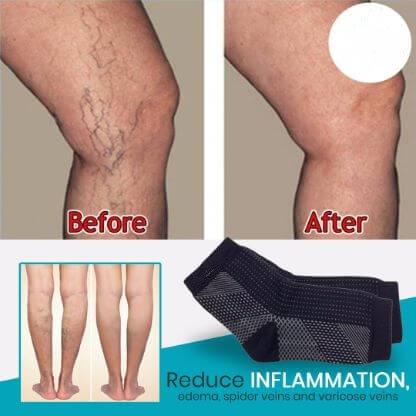 tratamentul genunchiului de cupru amelotex pentru tratamentul artrozei