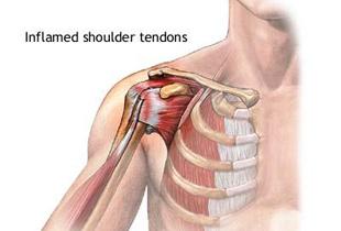 durere sub articulația sub axilă și umăr ce este sinovita tratamentului articulației genunchiului