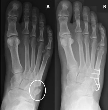 dureri articulare metatarsiene bursita seroasă a articulației genunchiului cum să tratezi