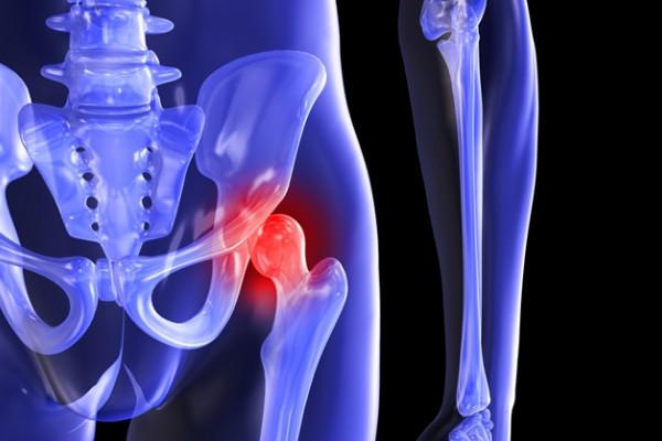 cum să amelioreze inflamația artrozei genunchiului