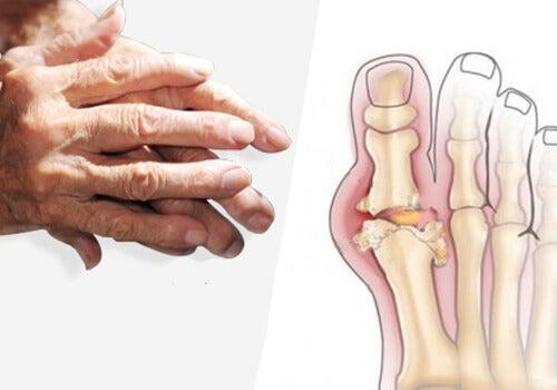 7 motive pentru a pierde în greutate pentru artrita psoriazică sănătatea zilnică