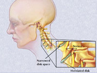 artroza cervicala tratament)