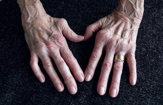 Artrita reumatoida - exercitii pentru maini