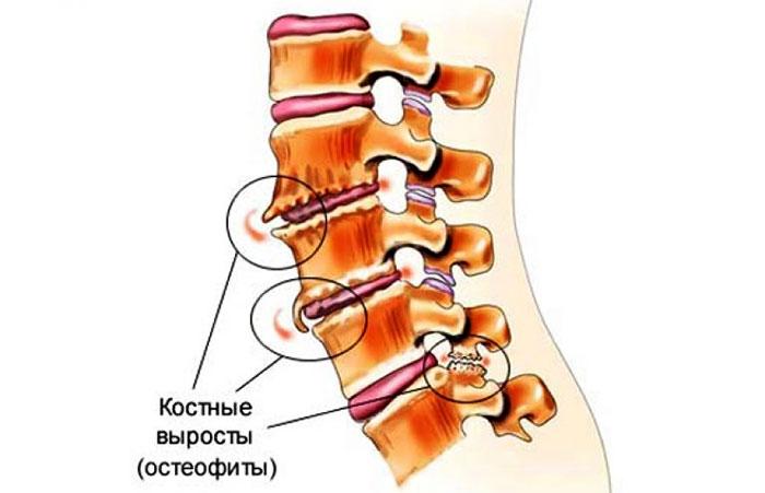 va otrăvi condroitina glucozaminică artrita tratament artroza la domiciliu