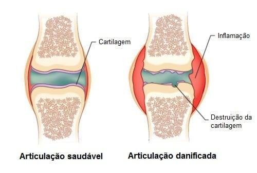 remediu articular artritic tratament cu jeleuri de artroză